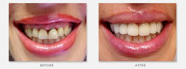 smilemakeover1